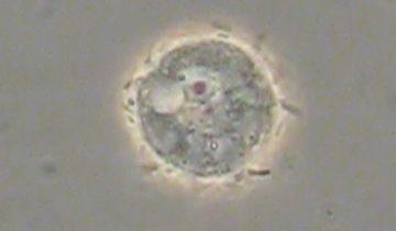 Акантамеба (факультативные паразиты)