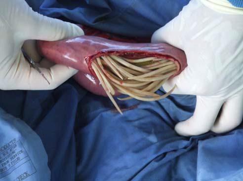 аскариды в кишечнике