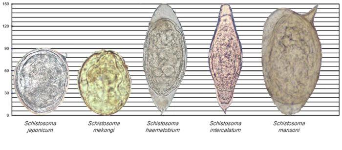 Что такое шистосомоз