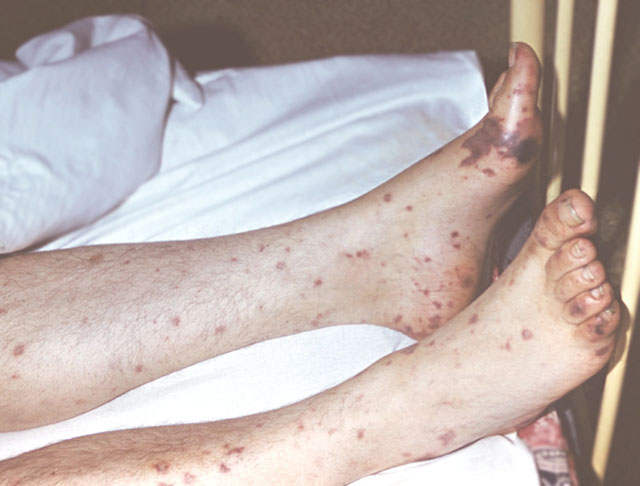 Проявление на коже