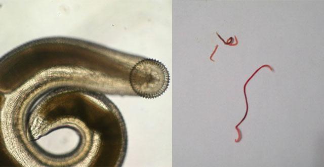 Gnathostoma spinigerum