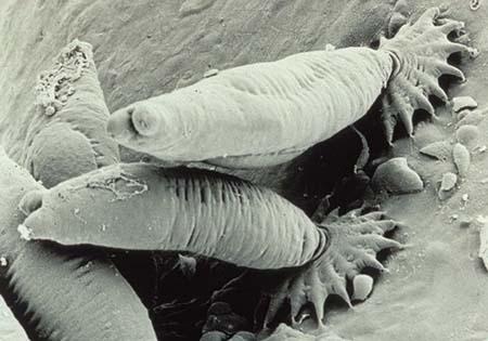 Дигенетические черви