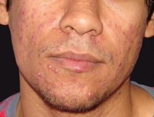 Проявление болезни на лице
