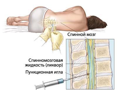 Получение спинномозговой жидкости