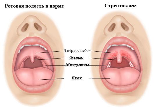 Стрептококк Ангинозус (Streptococcus anginosus) в мазке из зева, урете, моче у мужчин и женщин