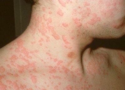 Красные высыпания на коже