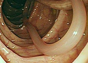 Как глисты попадают во влагалище