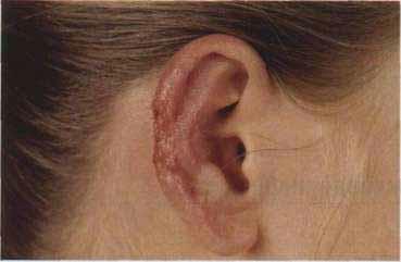 Язвы на ушах