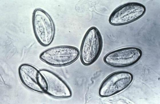 Яйца острицы