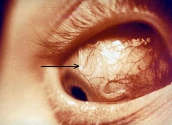 Глазная форма токсокароза