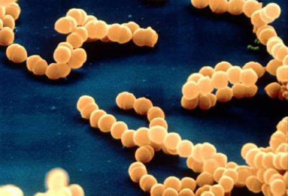 Лечение Staphylococcus Aureus