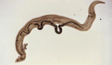Шистосоматоз