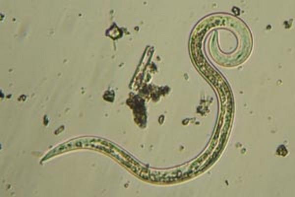Где развивается личинка аскариды