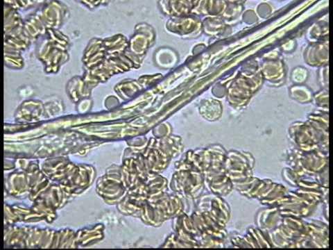 Личинка аскариды