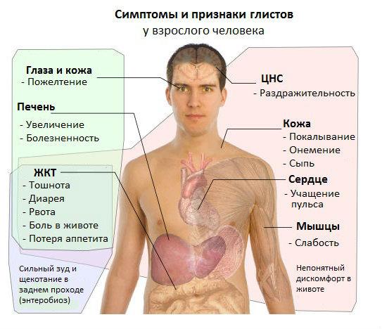 Симптомы глистов у взрослого