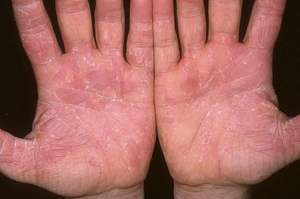 Синдром ошпаренной кожи