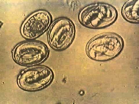 Яйца аскариды под микроскопом