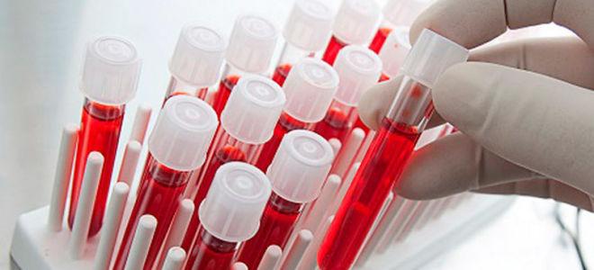 Кровь на антитела к лямблиям