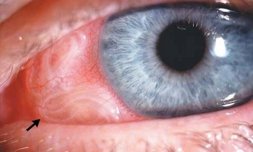 Аскариды в глазах
