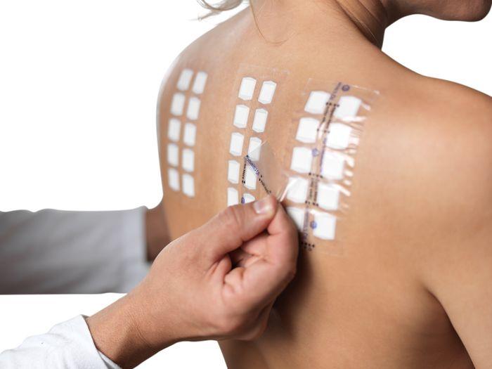 Аллергологический метод диагностики