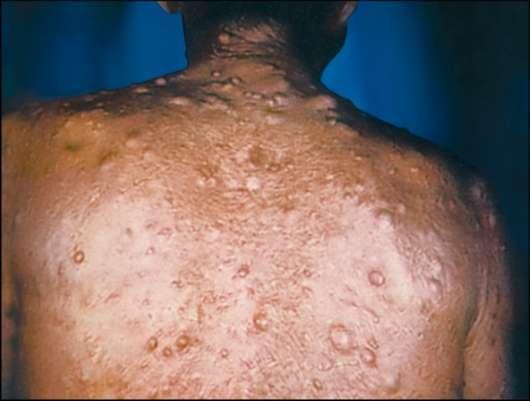 Симптоматика цистицеркоза