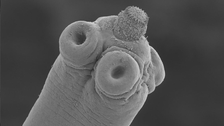 Суть паразитарной теории рака
