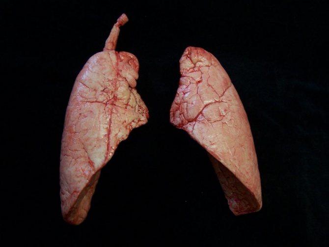 Диагностика аскаридоза в легких