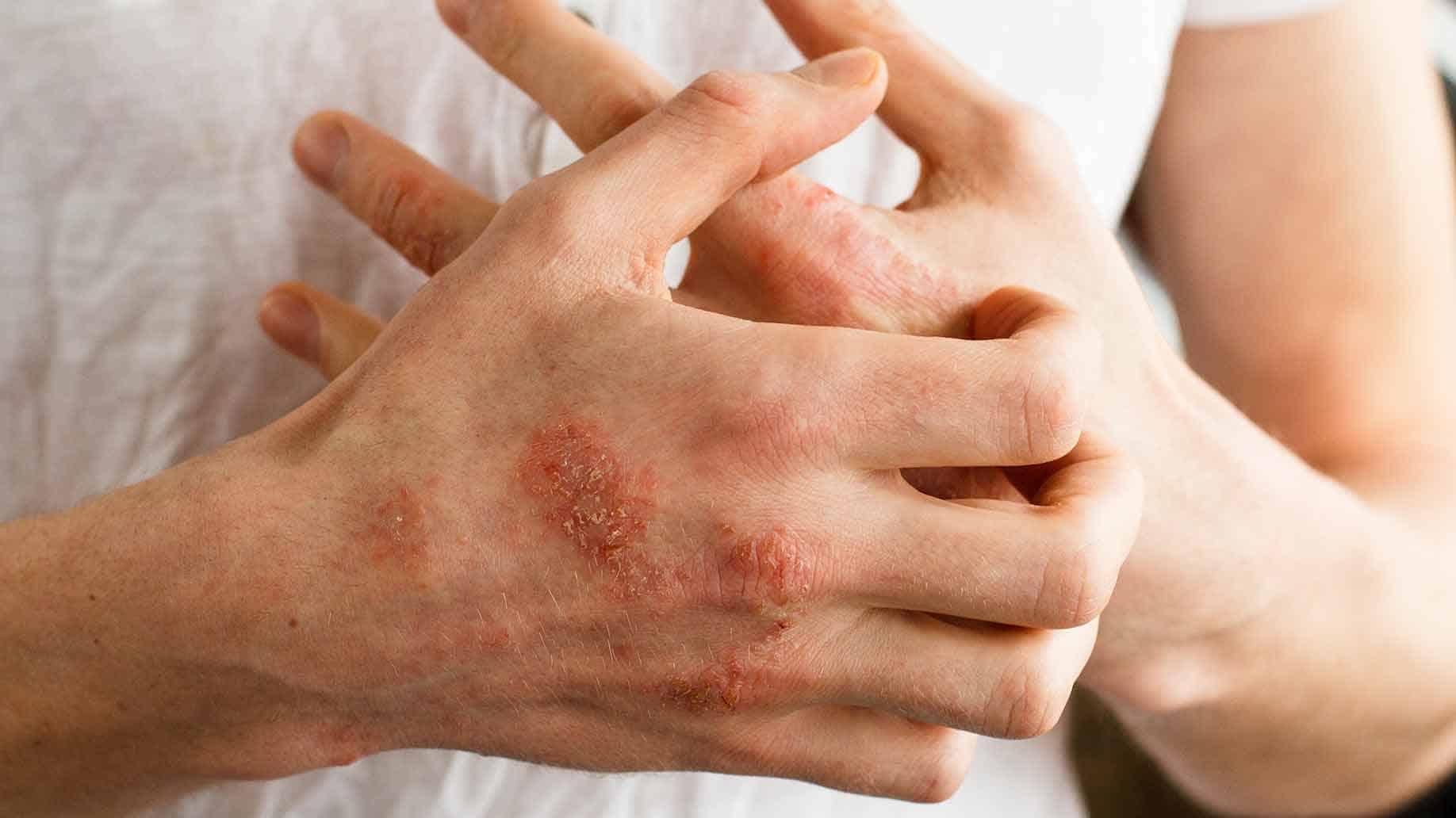 Стафилококковый дерматит
