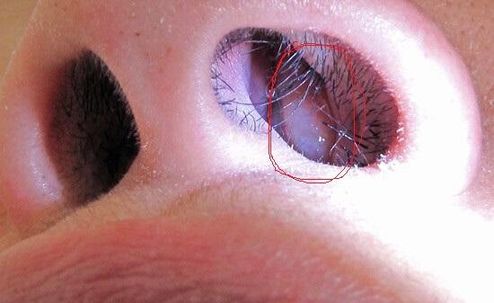 Клебсиелла пневмония в мазке из носа