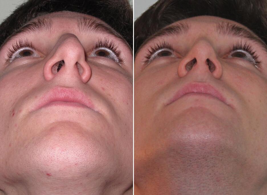 Симптомы клебсиеллы в носу