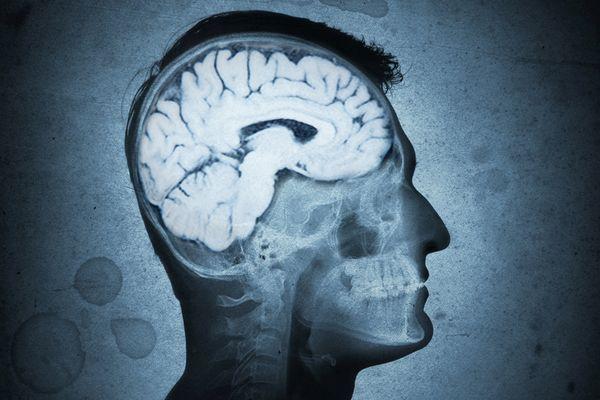 Аскариды в головном мозге человека