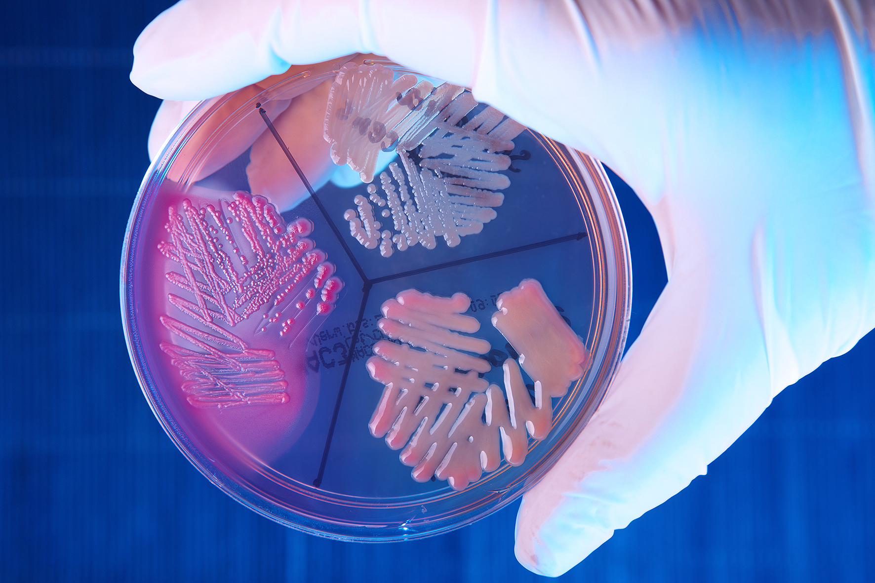 Что такое Enterobacter agglomerans?