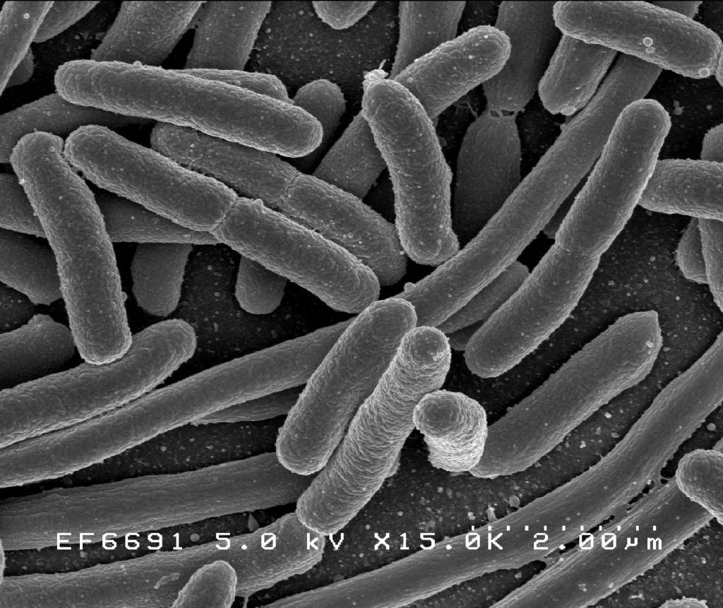 Патогенные и условно патогенные сапрофиты для человека: описание
