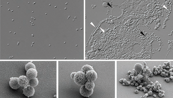 Рождение Синтии, или Проект Минимального Генома