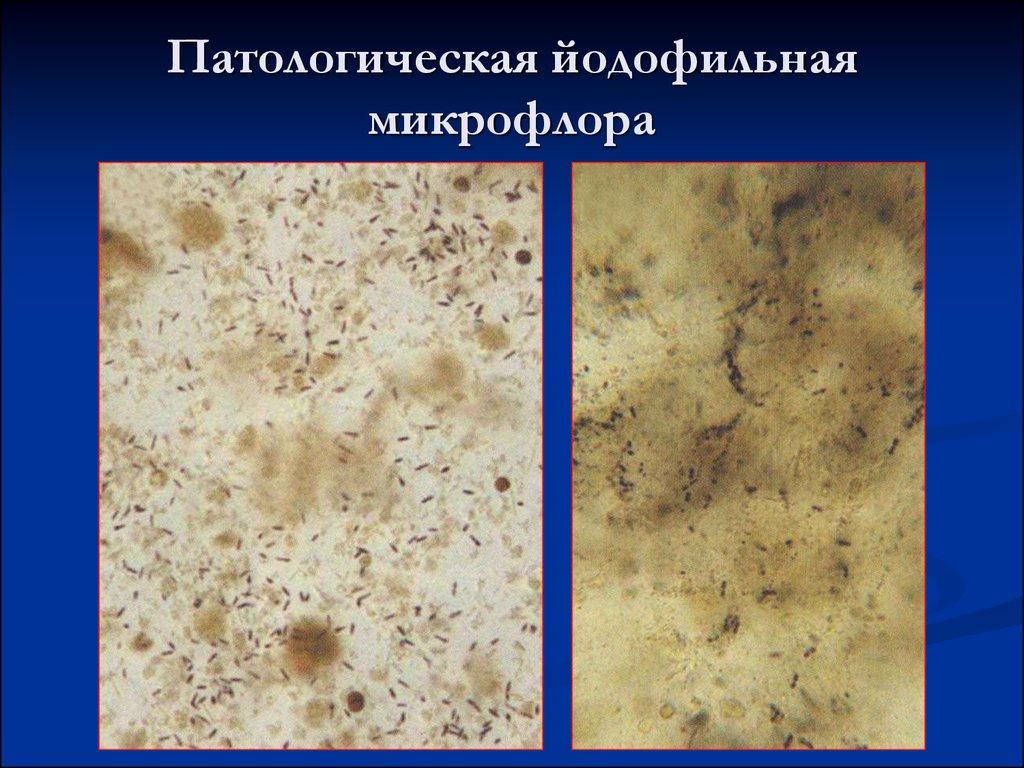 Йодофильная флора в кале