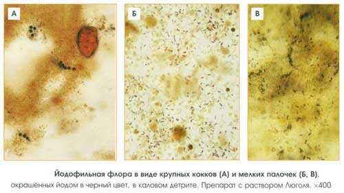 Причины быстрого роста йодофильных микробов