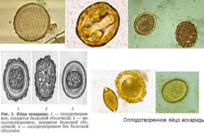 Осложнения аскаридоза