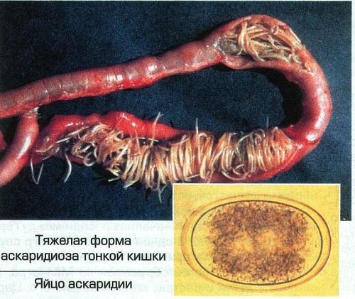 Чем и как вывести аскариды из организма самостоятельно